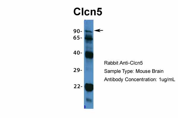 Clcn5 antibody - middle region (ARP34914_P050) in Mouse Brain cells using Western Blot