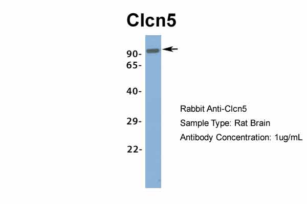 Clcn5 antibody - middle region (ARP34914_P050) in Rat Brain cells using Western Blot