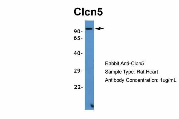 Clcn5 antibody - middle region (ARP34914_P050) in Mouse Heart cells using Western Blot