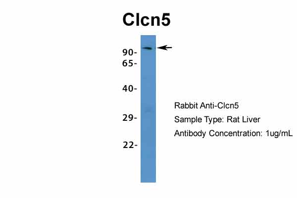 Clcn5 antibody - middle region (ARP34914_P050) in Rat Liver cells using Western Blot