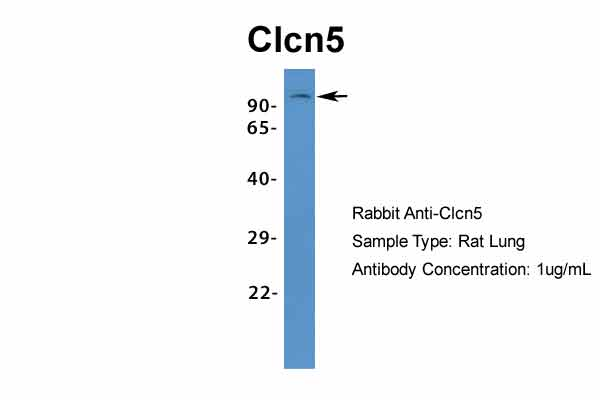 Clcn5 antibody - middle region (ARP34914_P050) in Rat Lung cells using Western Blot