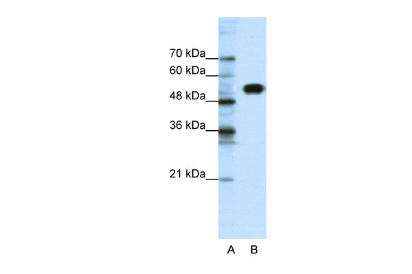CLCNKB antibody - N-terminal region (ARP34916_P050) in Human Jurkat cells using Western Blot