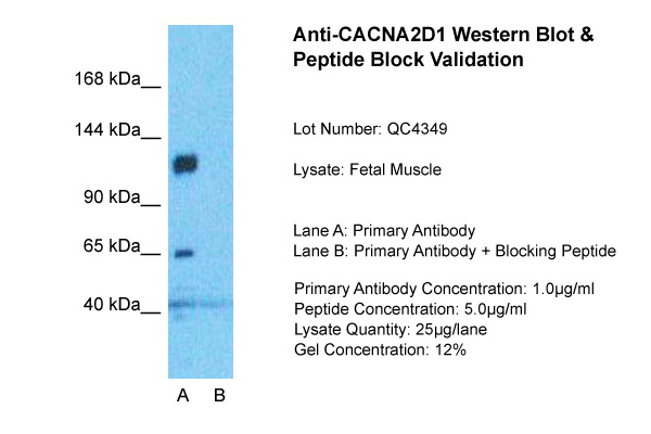 CACNA2D1 antibody - middle region (ARP34952_P050) in Fetal Muscle cells using Western Blot