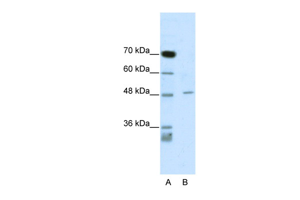 CACNB4 antibody - C-terminal region (ARP34959_P050) in Human Jurkat cells using Western Blot