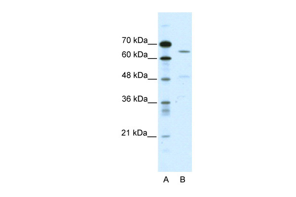 ACCN1 antibody - C-terminal region (ARP35033_P050) in Human HepG2 cells using Western Blot