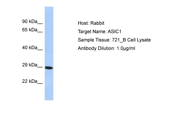ASIC1 Antibody - N-terminal region (ARP35034_P050) in Human 721_B cells using Western Blot