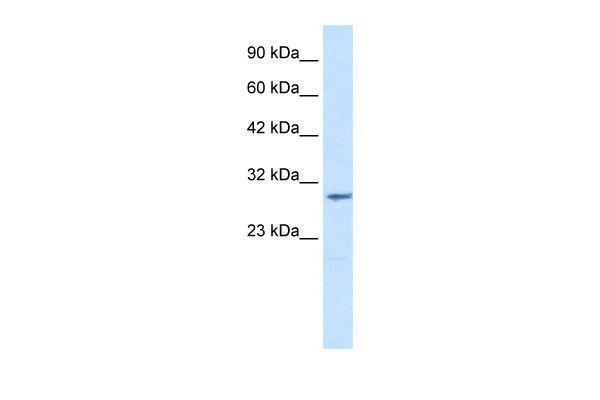 CLIC2 antibody - middle region (ARP35047_T100) in Human Jurkat cells using Western Blot