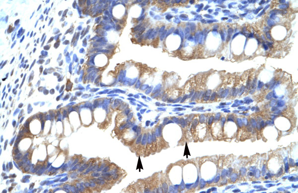 CLIC5 antibody - middle region (ARP35262_T100) in Human Intestine cells using Immunohistochemistry