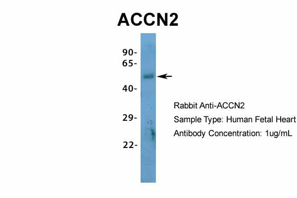 ACCN2 antibody - N-terminal region (ARP35298_P050) in Hum. Fetal Heart cells using Western Blot