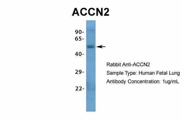ACCN2 antibody - N-terminal region (ARP35298_P050) in Hum. Fetal Lung cells using Western Blot