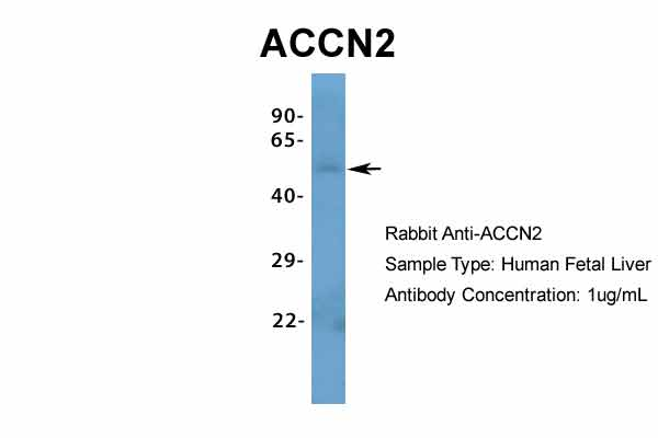 ACCN2 antibody - N-terminal region (ARP35298_P050) in Hum. Fetal Liver cells using Western Blot
