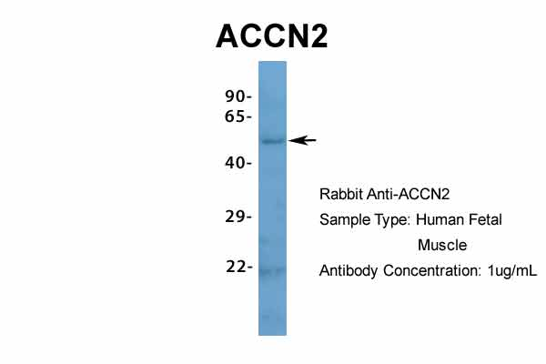 ACCN2 antibody - N-terminal region (ARP35298_P050) in Hum. Fetal Muscle cells using Western Blot