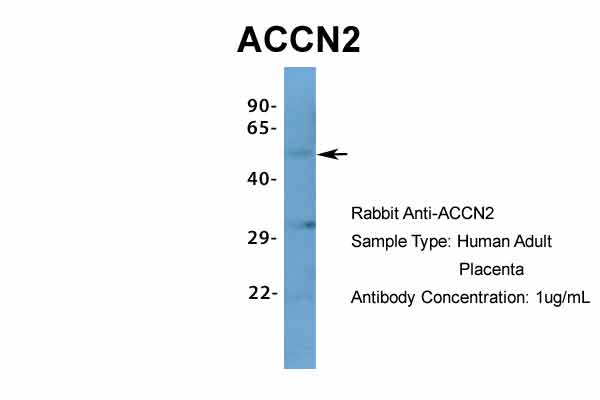 ACCN2 antibody - N-terminal region (ARP35298_P050) in Hum. Adult Placenta cells using Western Blot