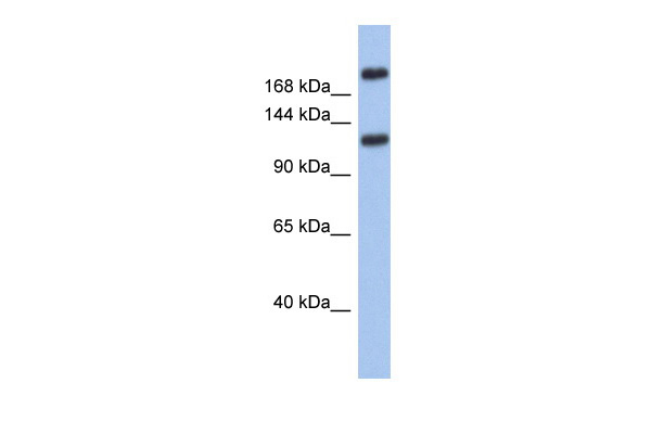 CACNA1I antibody - middle region (ARP35319_P050) in Human Small Intestine cells using Western Blot