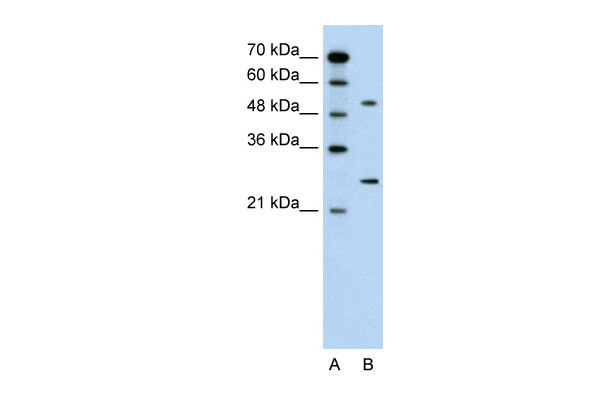CACNB1 antibody - middle region (ARP35579_P050) in Human Jurkat cells using Western Blot