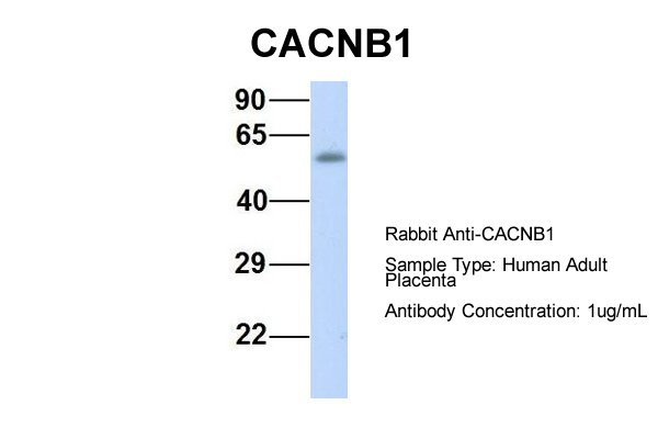 CACNB1 antibody - middle region (ARP35580_P050) in Hum. Adult Placenta cells using Western Blot
