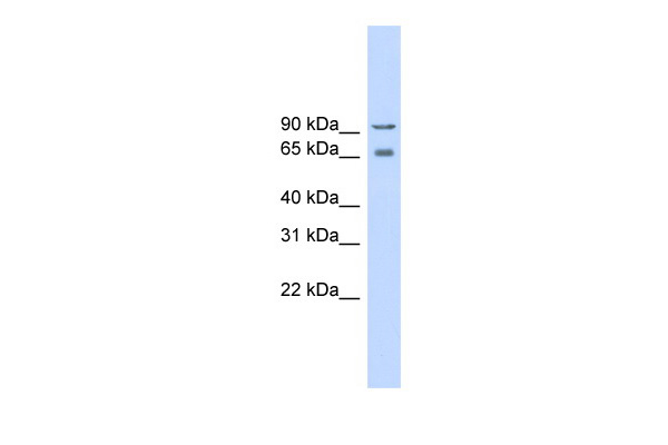 CACNB2 antibody - middle region (ARP35602_P050) in Human Lung cells using Western Blot