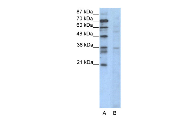 CCNB3 antibody - N-terminal region (ARP36087_T100) in Human Jurkat cells using Western Blot