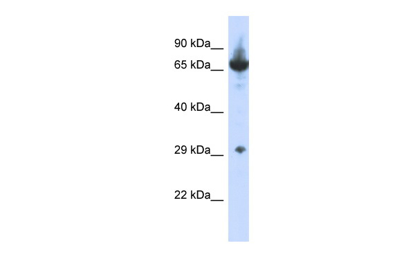 CCDC17 Antibody - N-terminal region (ARP36189_P050) in Human HepG2 cells using Western Blot