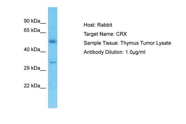 CRX Antibody - N-terminal region (ARP36301_P050) in Human Thymus Tumor cells using Western Blot
