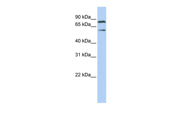 PEO1 antibody - middle region (ARP36483_P050) in Human Jurkat cells using Western Blot