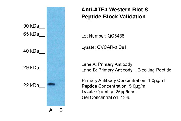 ATF3 antibody - middle region (ARP36556_P050) in OVCAR-3 cells using Western Blot