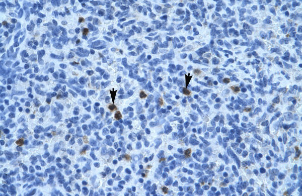 ANXA3 antibody - N-terminal region (ARP36578_T100) in Human Spleen cells using Immunohistochemistry