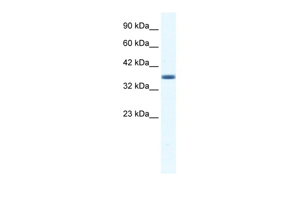 ANXA3 antibody - C-terminal region (ARP36579_T100) in Human HepG2 cells using Western Blot