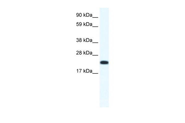 CITED4 antibody - N-terminal region (ARP37255_T100) in Mouse SP2/0 cells using Western Blot