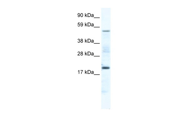 CSNK1G1 antibody - middle region (ARP37531_T100) in Mouse SP2/0 cells using Western Blot