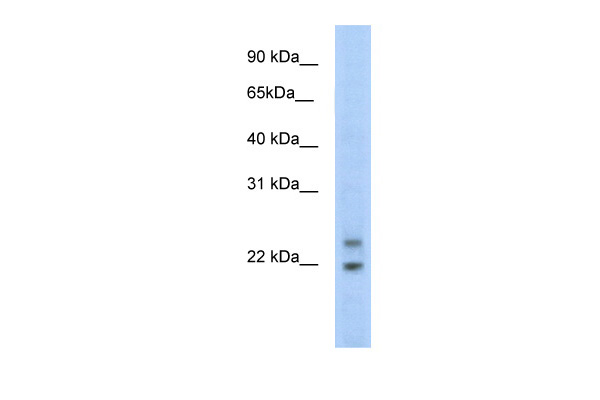 C330003B14RIK antibody - N-terminal region (ARP37549_T100) in Mouse SP2/0 cells using Western Blot