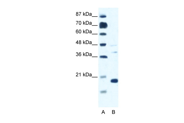 CACNG1 antibody - N-terminal region (ARP37668_P050) in Human Jurkat cells using Western Blot