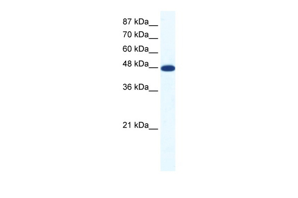 ACCN5 antibody - middle region (ARP37696_T100) in Human Jurkat cells using Western Blot