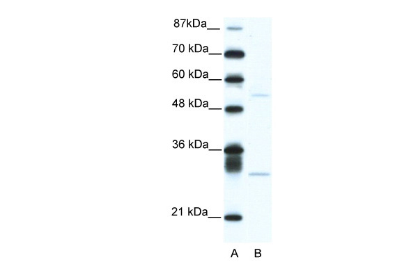 ATF4 antibody - C-terminal region (ARP38067_T100) in Human Jurkat cells using Western Blot
