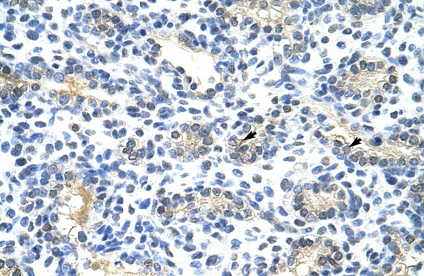 BLZF1 antibody - N-terminal region (ARP38375_T100) in Human Lung cells using Immunohistochemistry