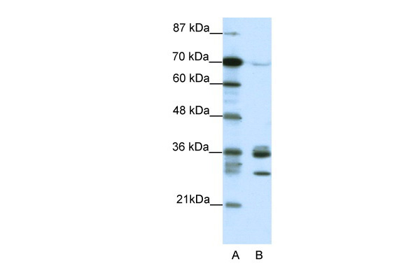 CDK5 antibody - C-terminal region (ARP38526_T100) in Human HepG2 cells using Western Blot