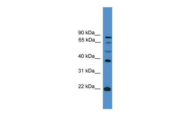 ASCL2 antibody - C-terminal region (ARP38572_P050) in Human PANC1 cells using Western Blot