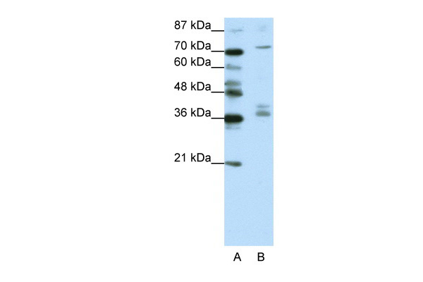 AKAP9 antibody - N-terminal region (ARP38677_T100) in Human Jurkat cells using Western Blot