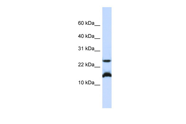 BATF antibody - N-terminal region (ARP38793_P050) in Human Jurkat cells using Western Blot