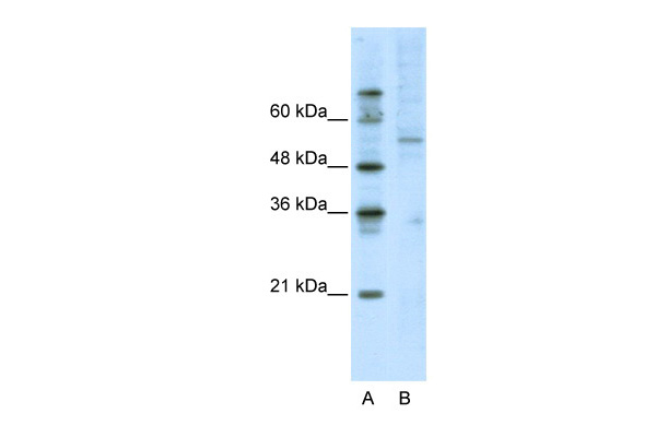 ATF7 antibody - C-terminal region (ARP38869_T100) in Human Jurkat cells using Western Blot
