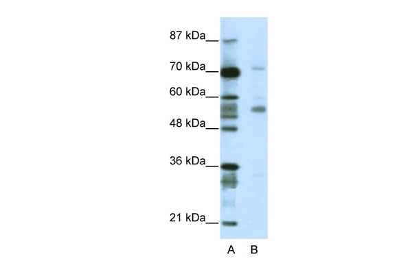 CORO1A antibody - N-terminal region (ARP38899_T100) in Human Jurkat cells using Western Blot