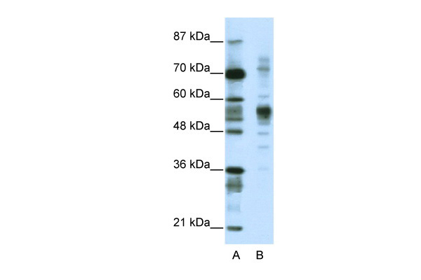 CORO1A antibody - C-terminal region (ARP38900_T100) in Human Jurkat cells using Western Blot