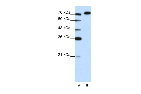 AKAP8L antibody - C-terminal region (ARP39080_T100) in Human Jurkat cells using Western Blot