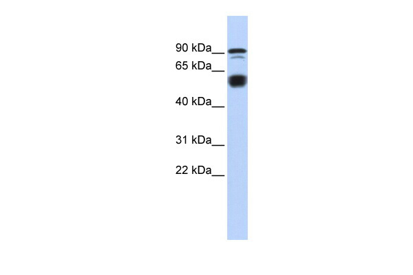 BCL11A antibody - N-terminal region (ARP39322_P050) in Human heart cells using Western Blot