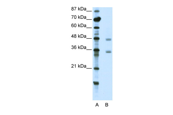 CBX8 antibody - C-terminal region (ARP39422_T100) in Human Jurkat cells using Western Blot