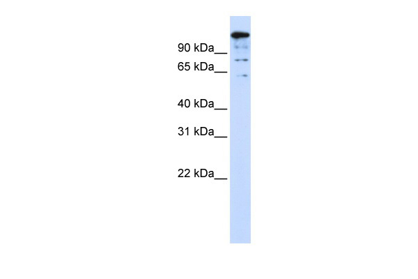BACH2 antibody - middle region (ARP39513_P050) in Human 293T cells using Western Blot
