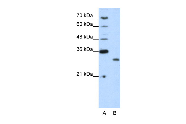 CPXCR1 antibody - N-terminal region (ARP39742_T100) in Human Jurkat cells using Western Blot