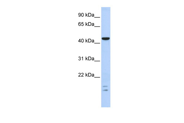 BTBD6 antibody - middle region (ARP39757_P050) in Human Brain cells using Western Blot