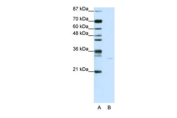 PDCD8 antibody - C-terminal region (ARP40199_P050) in Human Jurkat cells using Western Blot