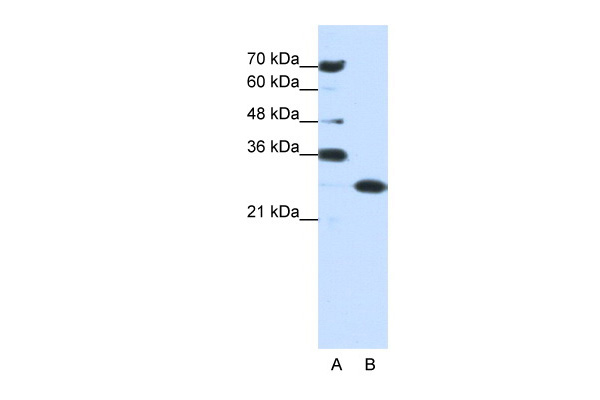 ANP32A antibody - middle region (ARP40203_P050) in Human Jurkat cells using Western Blot